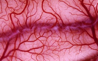 blood_vessels_1.jpg