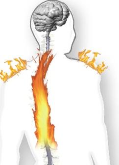 spinal-cord-injury-pain